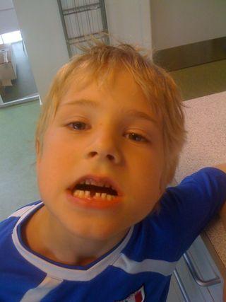 Oskars tand